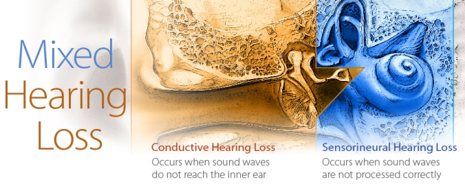 Types Of Hearing Loss Hearing Aid Guide