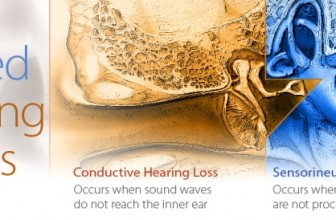 Learn about Types of Hearing Loss